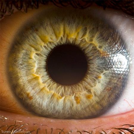 چشم از نمای نزدیک