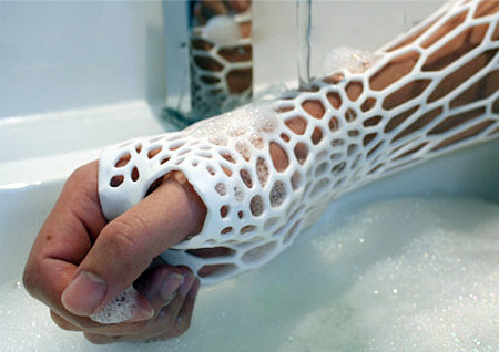 3D Printed Arm Cast
