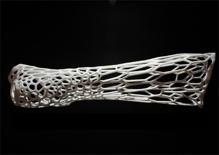 3D Printed Orthopedic Cast