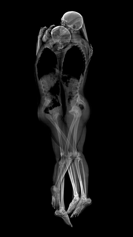 X-Ray Photos of Sleeping Couples