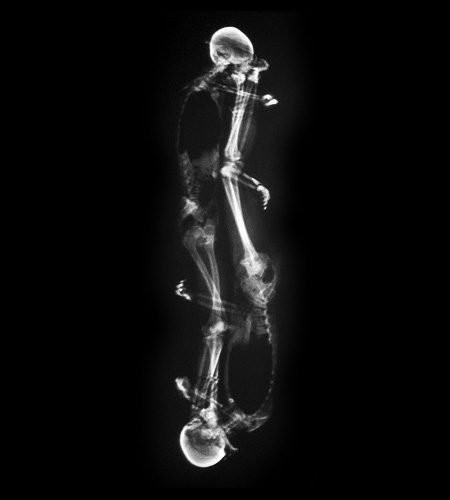 X-Ray Portraits of People
