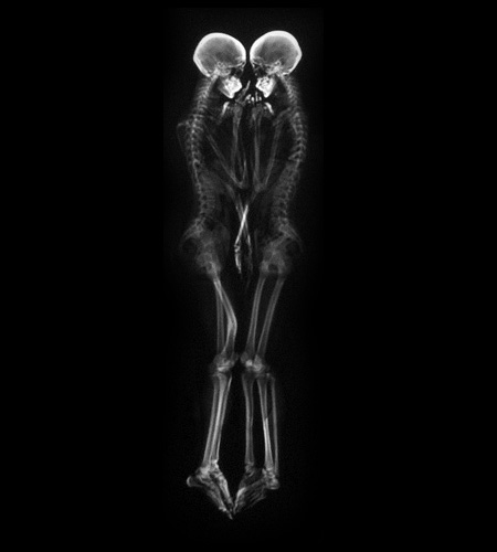 X-Ray Portraits of Couples