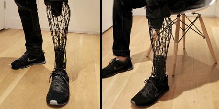 3D Printed Exo Prosthetic Leg