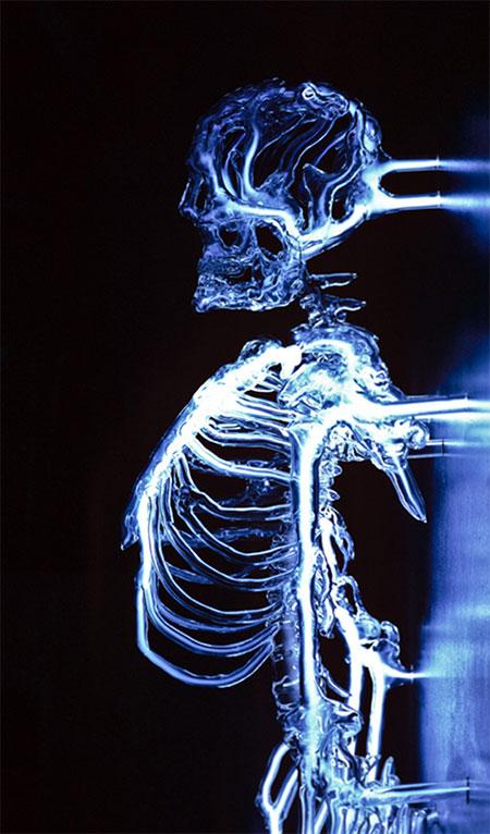 Skeleton Made of Glass