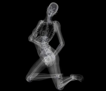 EIZO X-Ray Pin-Up Calendar